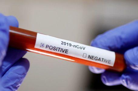 Coronavírus: Brasil tem ao menos 23 mil testes à espera do resultado